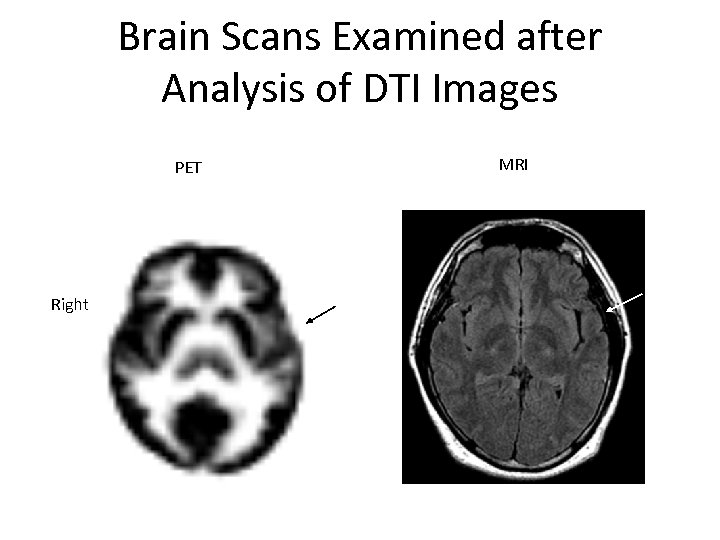 Brain Scans Examined after Analysis of DTI Images MRI PET Right 3/15/2018 37 War
