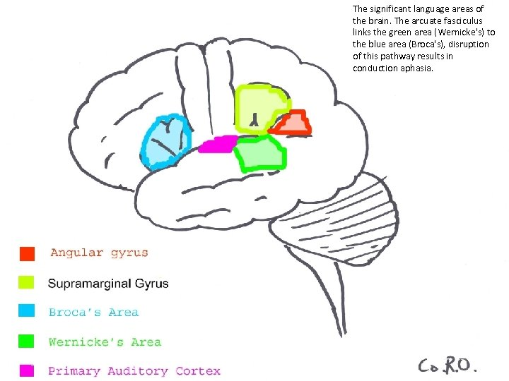 The significant language areas of the brain. The arcuate fasciculus links the green area