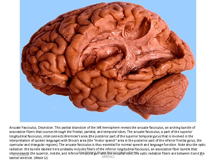 Arcuate Fasciculus, Dissection. This partial dissection of the left hemisphere reveals the arcuate fasciculus,