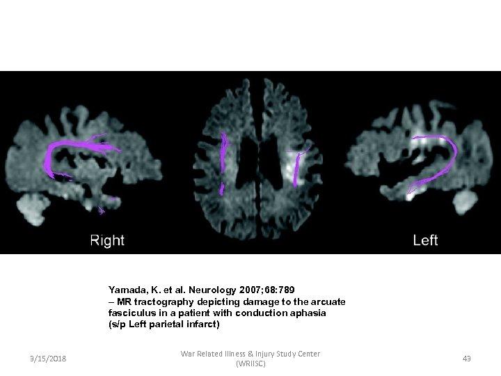 Yamada, K. et al. Neurology 2007; 68: 789 – MR tractography depicting damage to