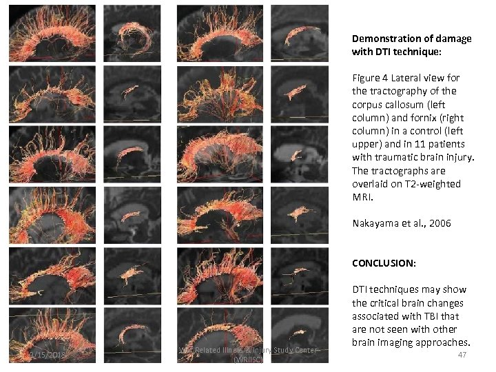 Demonstration of damage with DTI technique: Figure 4 Lateral view for the tractography of