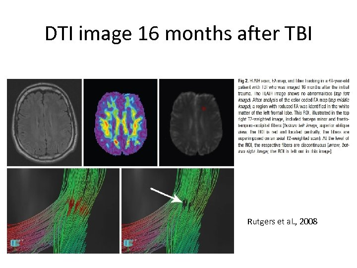 DTI image 16 months after TBI Rutgers et al. , 2008