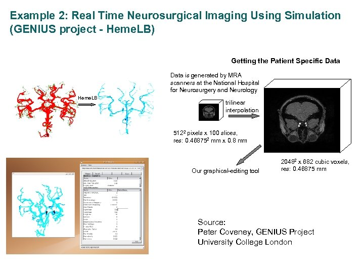 Example 2: Real Time Neurosurgical Imaging Using Simulation (GENIUS project - Heme. LB) Medical