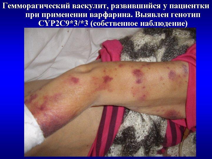 Гемморагический васкулит, развившийся у пациентки применении варфарина. Выявлен генотип CYP 2 C 9*3/*3 (собственное