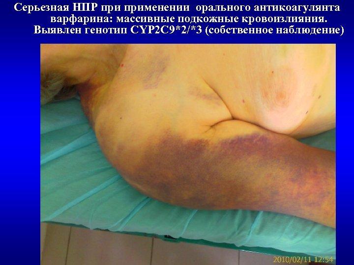 Серьезная НПР применении орального антикоагулянта варфарина: массивные подкожные кровоизлияния. Выявлен генотип CYP 2 C