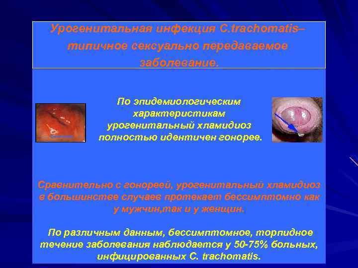 Урогенитальная инфекция С. trachomatis– типичное сексуально передаваемое заболевание. По эпидемиологическим характеристикам урогенитальный хламидиоз полностью