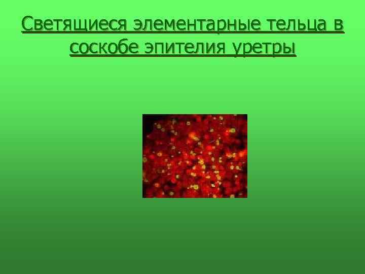 Светящиеся элементарные тельца в соскобе эпителия уретры