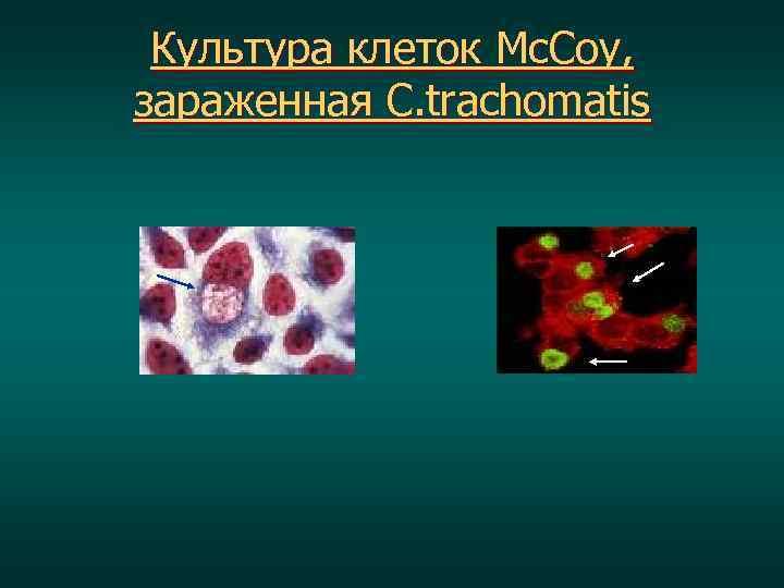 Культура клеток Mc. Coy, зараженная C. trachomatis