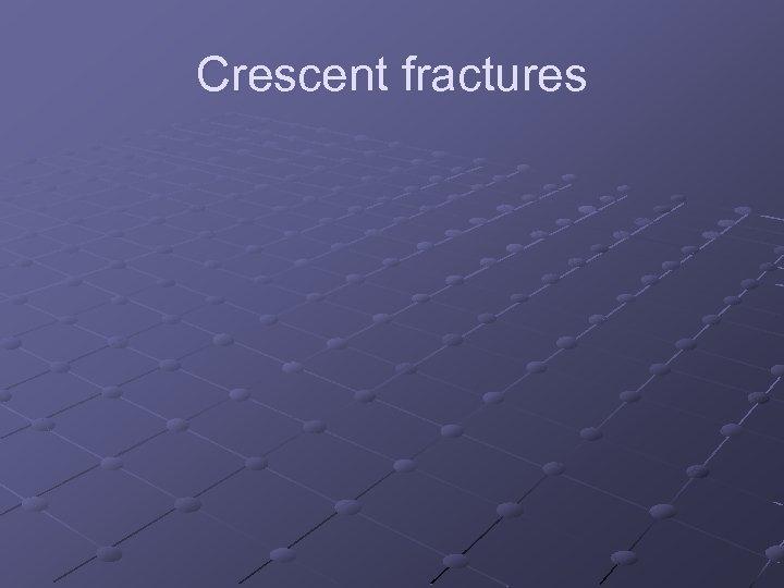 Crescent fractures