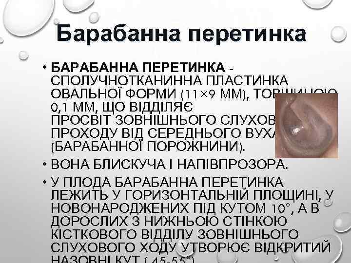 Барабанна перетинка • БАРАБАННА ПЕРЕТИНКА СПОЛУЧНОТКАНИННА ПЛАСТИНКА ОВАЛЬНОЇ ФОРМИ (11× 9 ММ), ТОВЩИНОЮ 0,