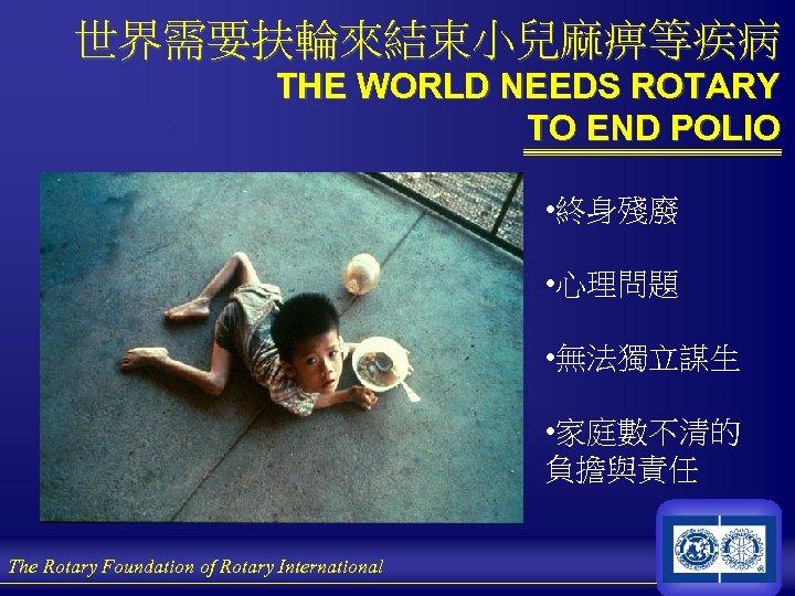 世界需要扶輪來結束小兒麻痹等疾病 THE WORLD NEEDS ROTARY TO END POLIO • 終身殘廢 • 心理問題 • 無法獨立謀生