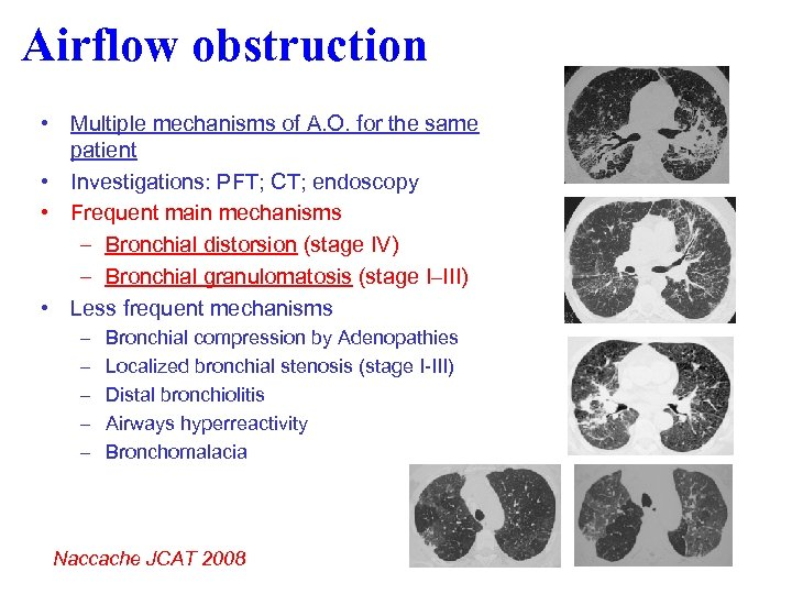 Airflow obstruction • Multiple mechanisms of A. O. for the same patient • Investigations: