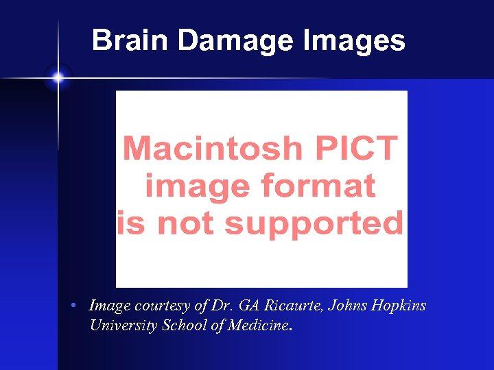Brain Damage Images • Image courtesy of Dr. GA Ricaurte, Johns Hopkins University School