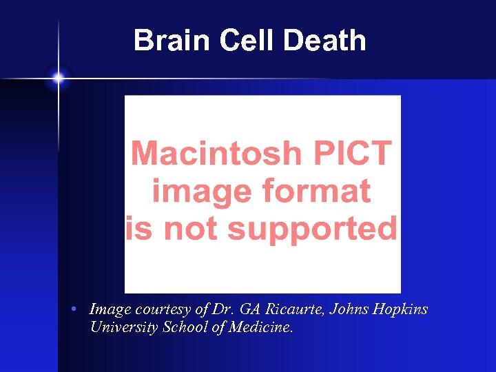Brain Cell Death • Image courtesy of Dr. GA Ricaurte, Johns Hopkins University School