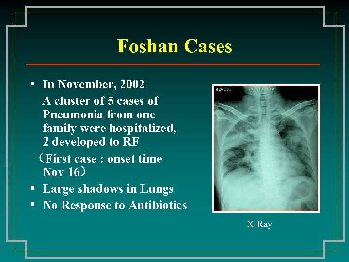 Foshan Cases § In November, 2002 A cluster of 5 cases of Pneumonia from
