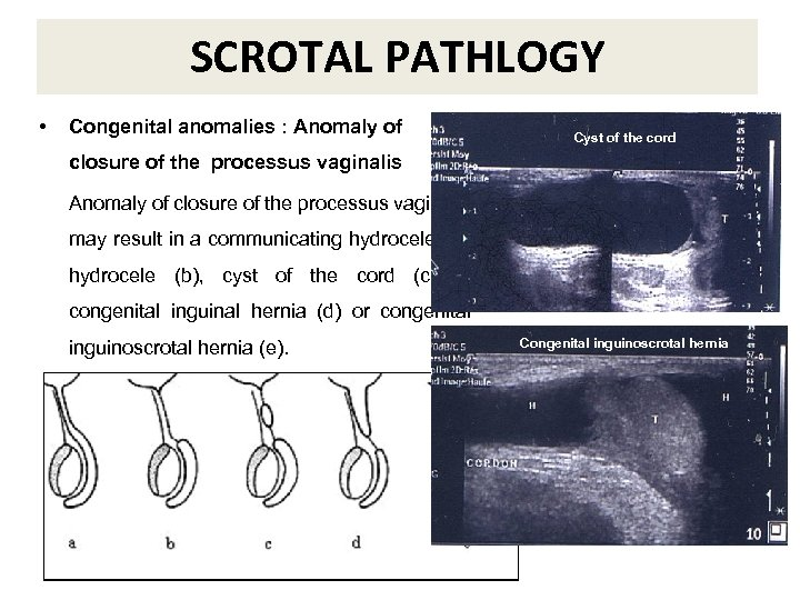 SCROTAL PATHLOGY • Congenital anomalies : Anomaly of Cyst of the cord closure of