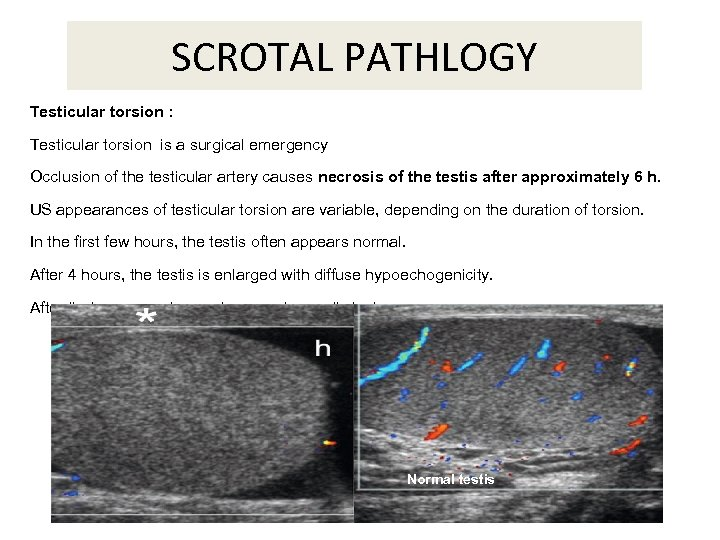 SCROTAL PATHLOGY Testicular torsion : Testicular torsion is a surgical emergency Occlusion of the
