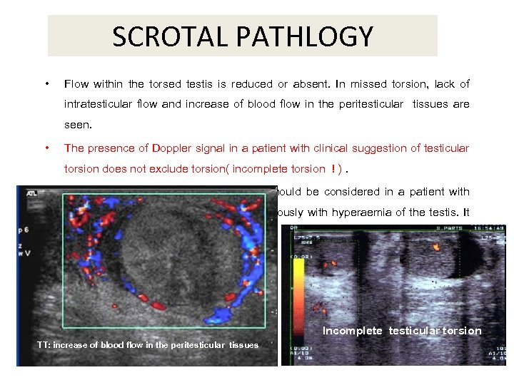 SCROTAL PATHLOGY • Flow within the torsed testis is reduced or absent. In missed