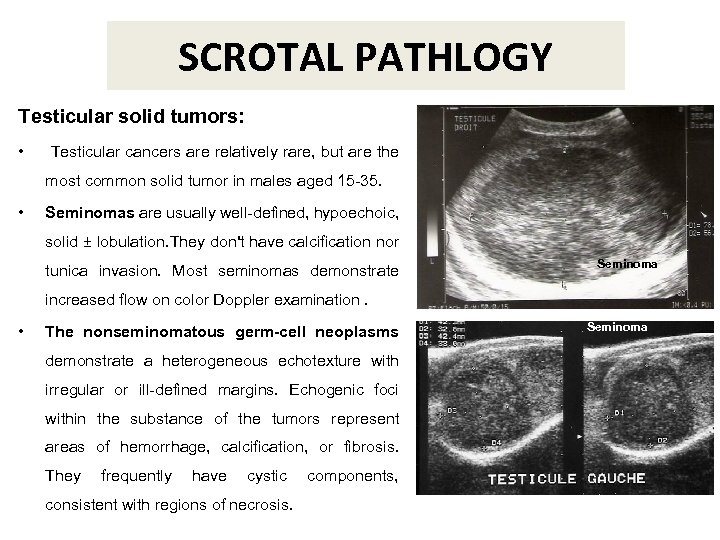 SCROTAL PATHLOGY Testicular solid tumors: • Testicular cancers are relatively rare, but are the