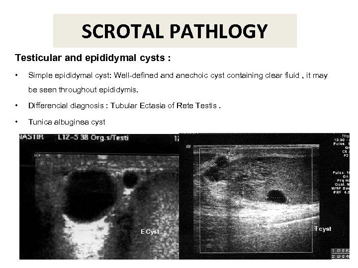 SCROTAL PATHLOGY Testicular and epididymal cysts : • Simple epididymal cyst: Well-defined anechoic cyst