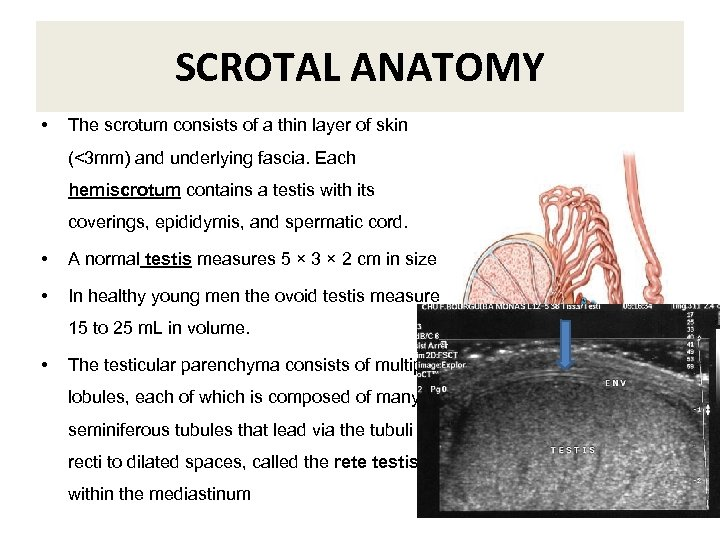 SCROTAL ANATOMY • The scrotum consists of a thin layer of skin (<3 mm)