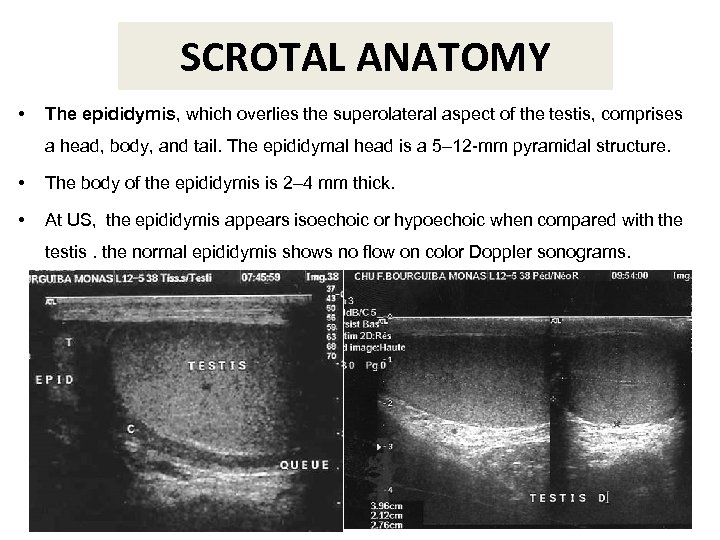 SCROTAL ANATOMY • The epididymis, which overlies the superolateral aspect of the testis, comprises