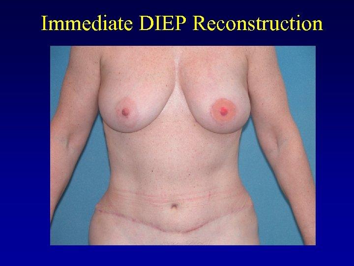 Immediate DIEP Reconstruction