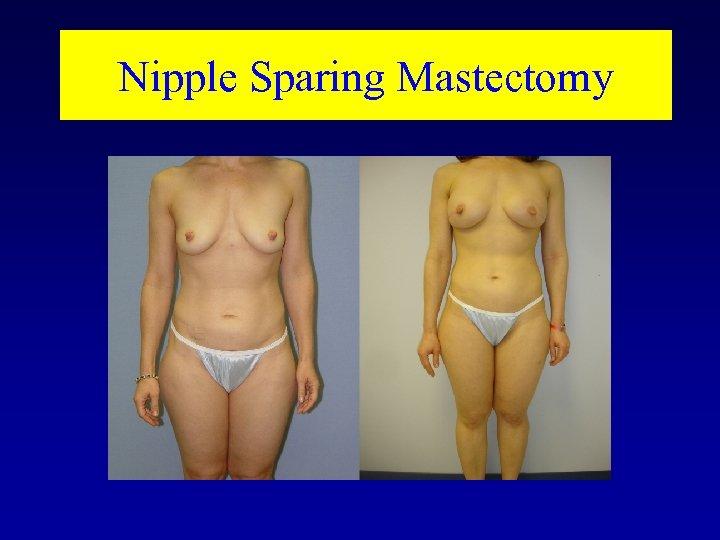 Nipple Sparing Mastectomy