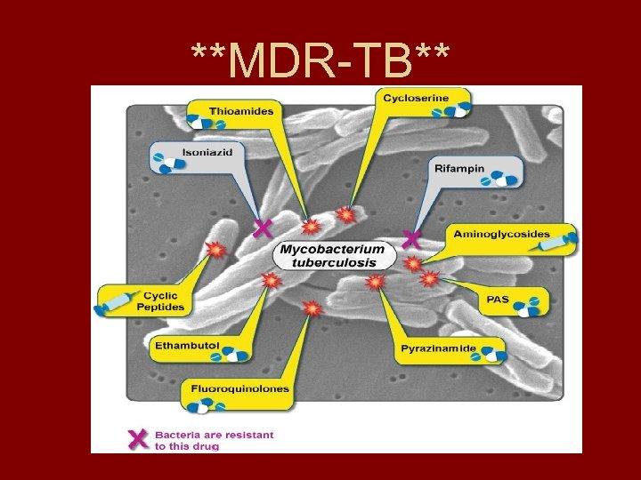**MDR-TB**