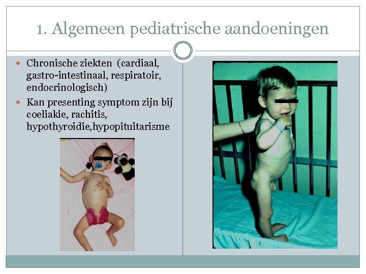 1. Algemeen pediatrische aandoeningen Chronische ziekten (cardiaal, gastro-intestinaal, respiratoir, endocrinologisch) Kan presenting symptom zijn