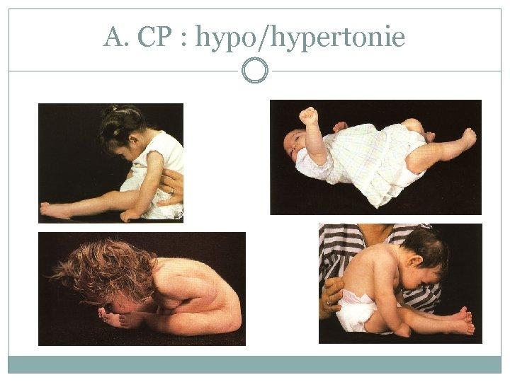 A. CP : hypo/hypertonie