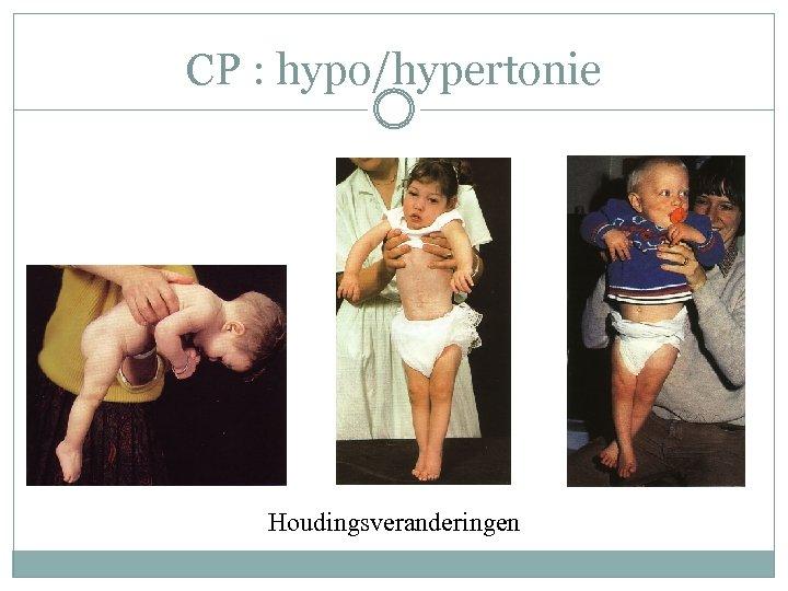 CP : hypo/hypertonie Houdingsveranderingen