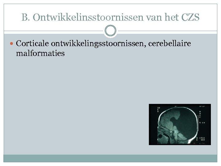 B. Ontwikkelinsstoornissen van het CZS Corticale ontwikkelingsstoornissen, cerebellaire malformaties