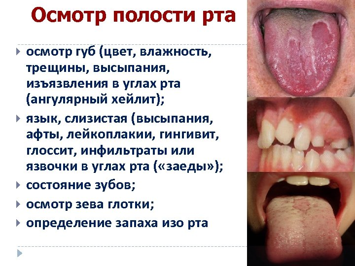 Осмотр полости рта осмотр губ (цвет, влажность, трещины, высыпания, изъязвления в углах рта (ангулярный