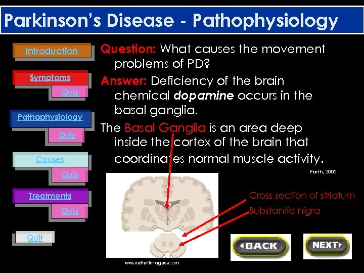 Parkinson's Disease - Pathophysiology Introduction Symptoms Quiz Pathophysiology Quiz Causes Question: What causes the