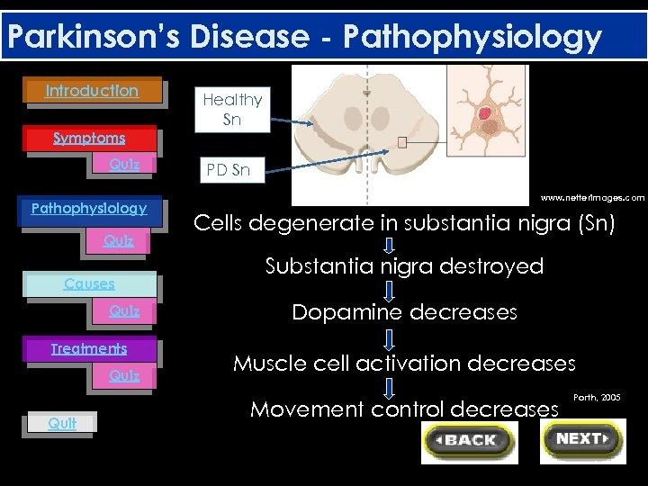 Parkinson's Disease - Pathophysiology Introduction Healthy Sn Symptoms Quiz Pathophysiology Quiz Causes Quiz Treatments