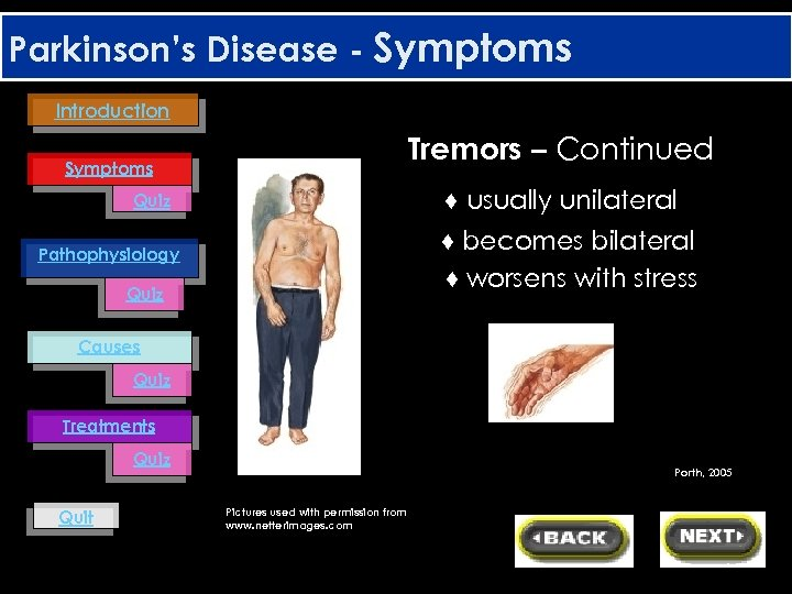 Parkinson's Disease - Symptoms Introduction Tremors – Continued Symptoms ♦ usually unilateral Quiz ♦