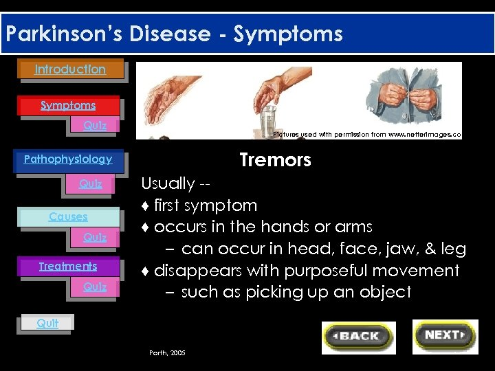 Parkinson's Disease - Symptoms Introduction Symptoms Quiz Pictures used with permission from www. netterimages.