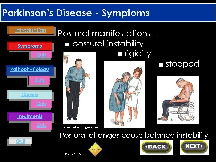 Parkinson's Disease - Symptoms Introduction Symptoms Quiz Postural manifestations – ■ postural instability ■