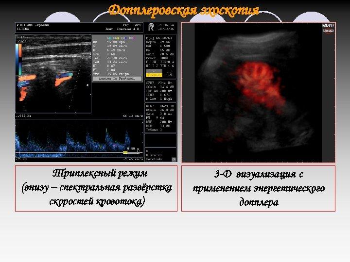 Допплеровская эхоскопия Триплексный режим (внизу – спектральная развёрстка скоростей кровотока) 3 -D визуализация с