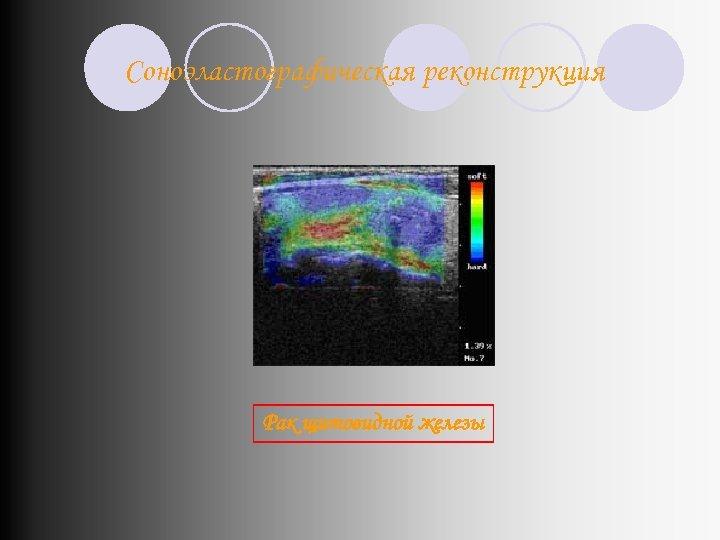 Соноэластографическая реконструкция Рак щитовидной железы