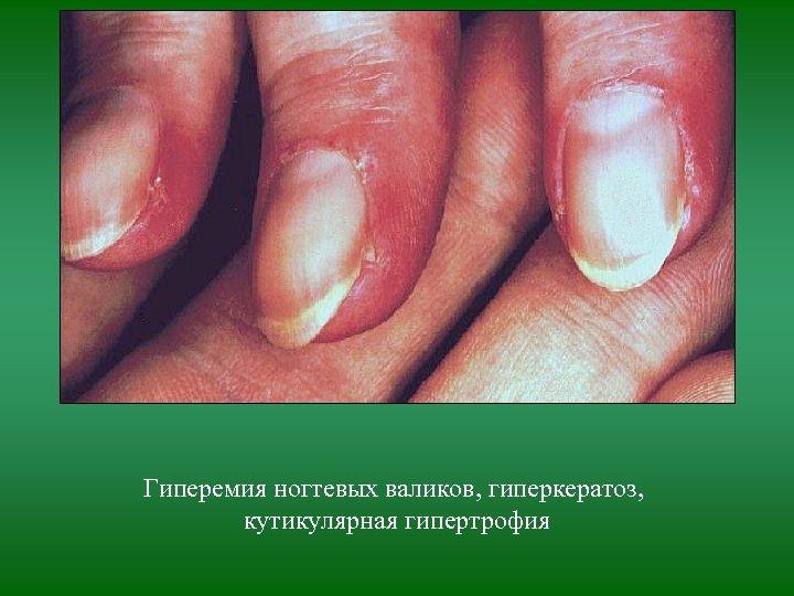 Гиперемия ногтевых валиков, гиперкератоз, кутикулярная гипертрофия