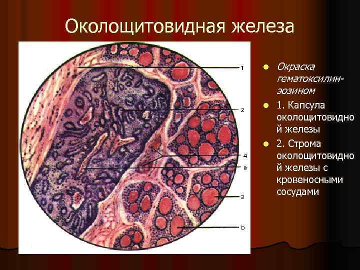 Околощитовидная железа l Окраска гематоксилинэозином 1. Капсула околощитовидно й железы l 2. Строма околощитовидно