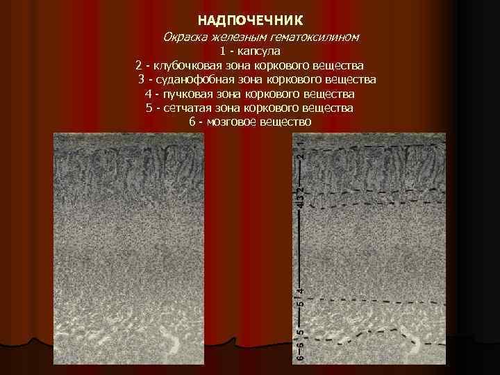 НАДПОЧЕЧНИК Окраска железным гематоксилином 1 капсула 2 клубочковая зона коркового вещества 3 суданофобная зона