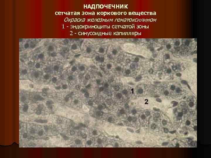 НАДПОЧЕЧНИК сетчатая зона коркового вещества Окраска железным гематоксилином 1 эндокриноциты сетчатой зоны 2 синусоидные