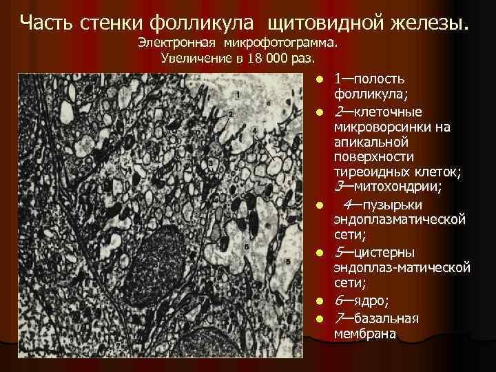 Часть стенки фолликула щитовидной железы. Электронная микрофотограмма. Увеличение в 18 000 раз. l