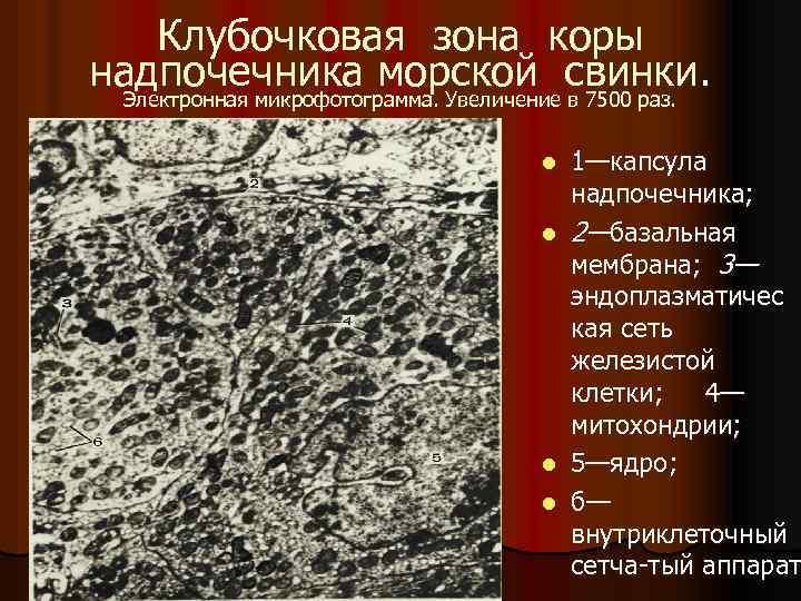 Клубочковая зона коры надпочечника морской свинки. Электронная микрофотограмма. Увеличение в 7500 раз. 1—капсула надпочечника;