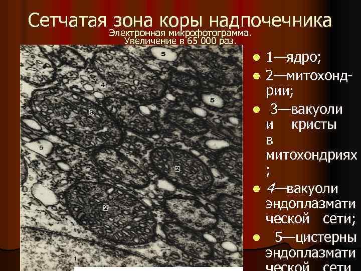 Сетчатая зона коры надпочечника Электронная микрофотограмма. Увеличение в 65 000 раз. l l l