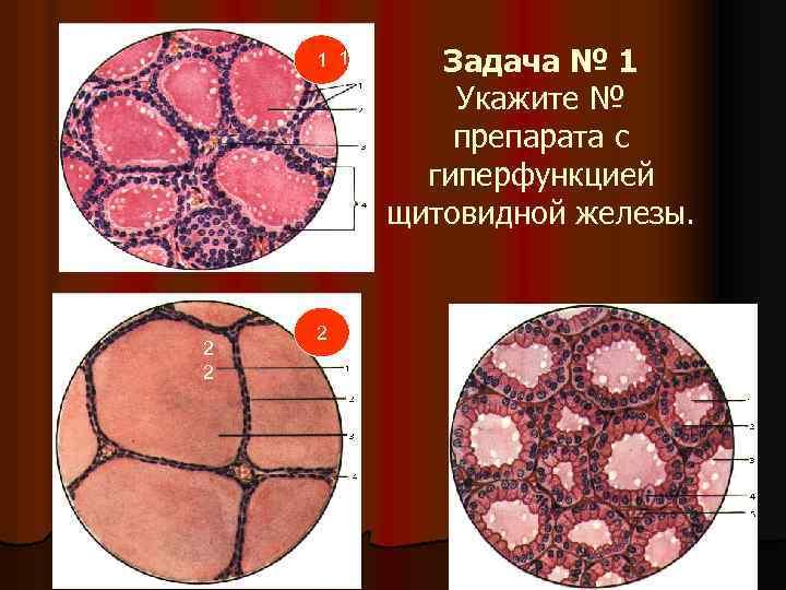 1 1 1 2 2 2 Задача № 1 Укажите № препарата с гиперфункцией