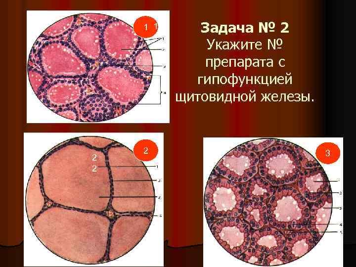 1 1 1 2 2 2 Задача № 2 Укажите № препарата с гипофункцией
